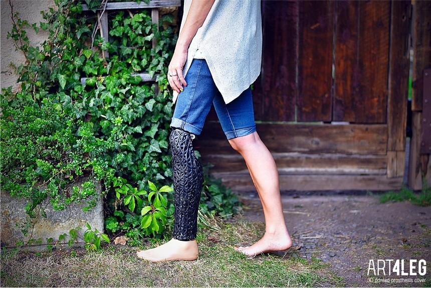 3d печать протеза